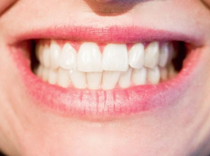 Habits, Teeth, Floss, Brushing Teeth, Dentist, Diana Smith, Rhonda Massad, West Island Blog, smoking, acidic foods, Cavities