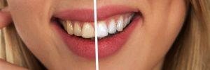 Dental Veneers, Bleaching & Repairs: Bits and Pieces of Cosmetic Dentistry
